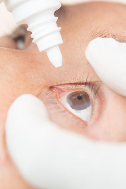 Conjuntivite nas mulheres oculares Foto Premium