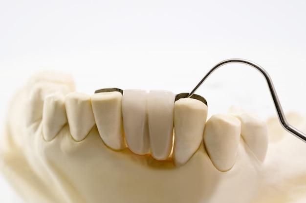 Coroa dental da ponte do close up maryland e equipamento e modelo da ponte expressam a restauração do reparo. Foto Premium