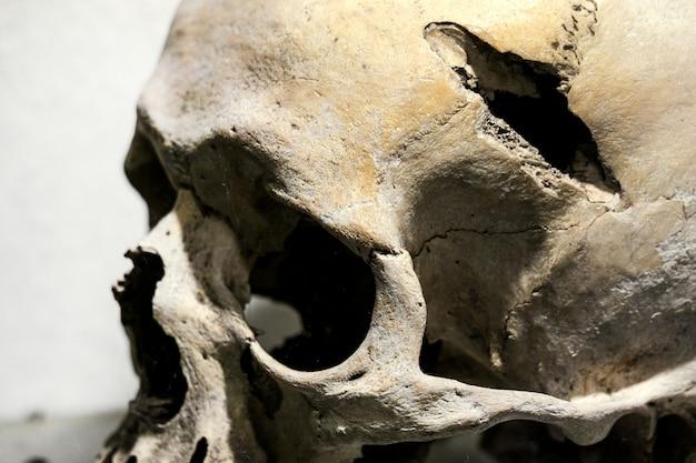Crânio humano após lesão. buraco no crânio humano Foto Premium