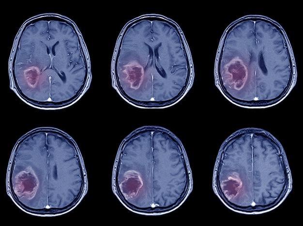 Ct-scan brain imaging para avc hemorrágico ou acidente vascular cerebral isquêmico. Foto Premium