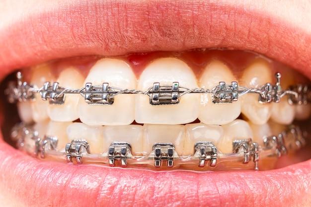 Dentes em primeiro plano com aparelho Foto Premium