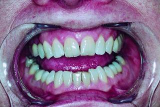 Dentes humanos, Foto gratuita