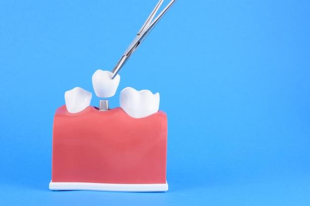 Dentista de boca falsa em azul Foto Premium