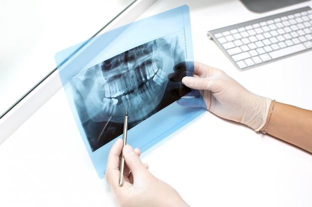 Dentista examina foto de raio-x dos dentes Foto gratuita