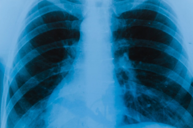 Detalhe, de, um, raio x, de, pulmões Foto gratuita
