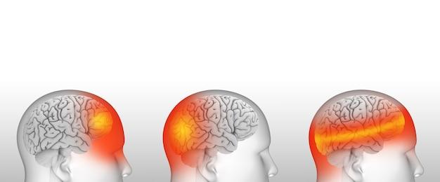 Diferentes tipos de dores de cabeça enxaqueca, pressão arterial e tensão Foto Premium