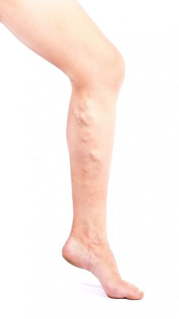 Doença de phlebeurysm nas pernas no fundo branco Foto Premium