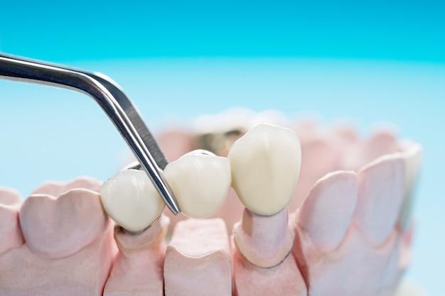 Equipamentos para odontologia de implantes de coroas e pontes protéticas ou de implante de closeup / protético / ponte e restauração de reparo expresso do modelo. Foto Premium