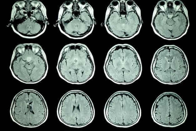 Exame de ressonância magnética do cérebro do paciente Foto Premium