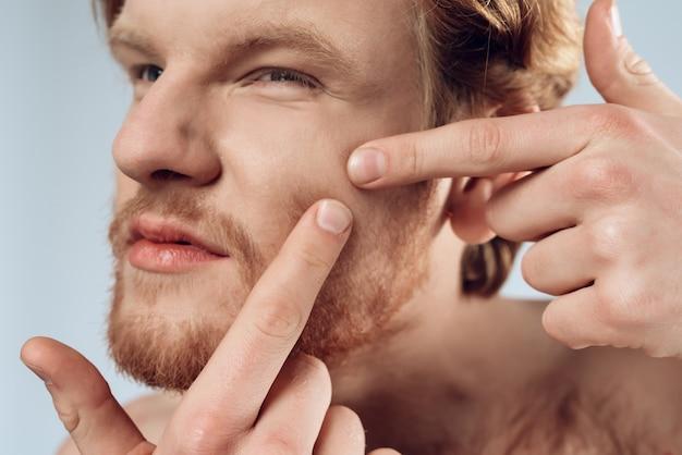 Fechar-se. jovem de cabelos vermelho espremer espinha Foto Premium