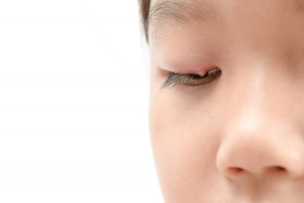 Feche acima da infecção asiática do olho da menina uma isolada Foto Premium