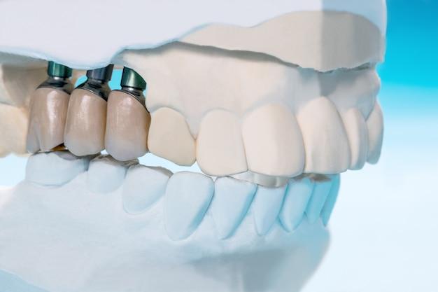 Feche o suporte do dente do modelo de implante, fixe o implante e a ponte da ponte. Foto Premium