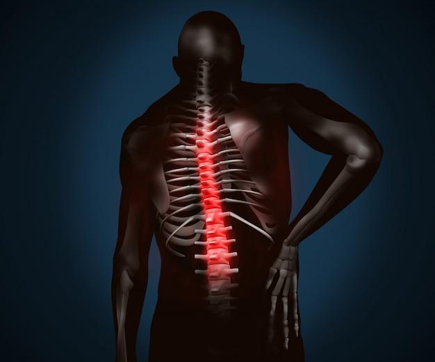 Figura digital preta com dor nas costas realçada Foto Premium