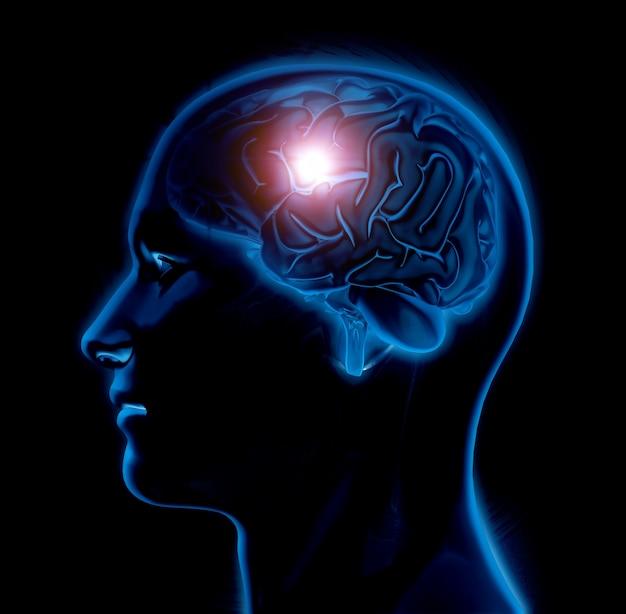 Figura médica masculina 3d com o cérebro destacado Foto gratuita