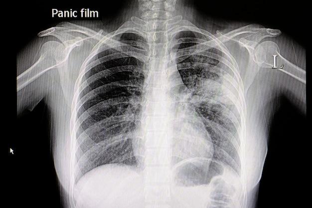 Filme de peito de pneumonia Foto Premium