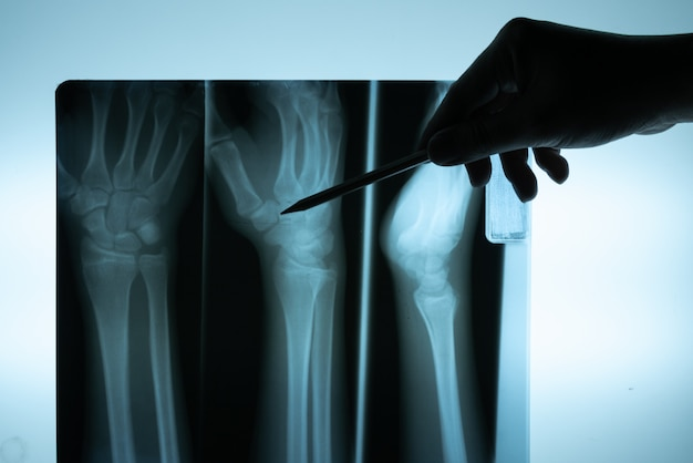Filme de raio-x com a mão do médico para examinar Foto Premium