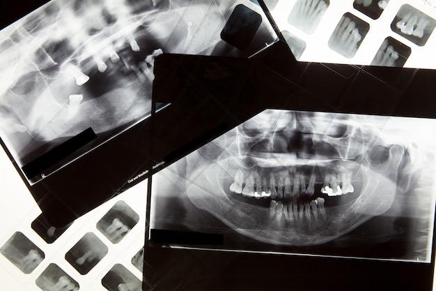 Filme de raio x dental para o conceito de atendimento odontológico Foto Premium