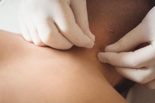 Fisioterapeuta realizando agulhamento seco no pescoço de um paciente Foto gratuita