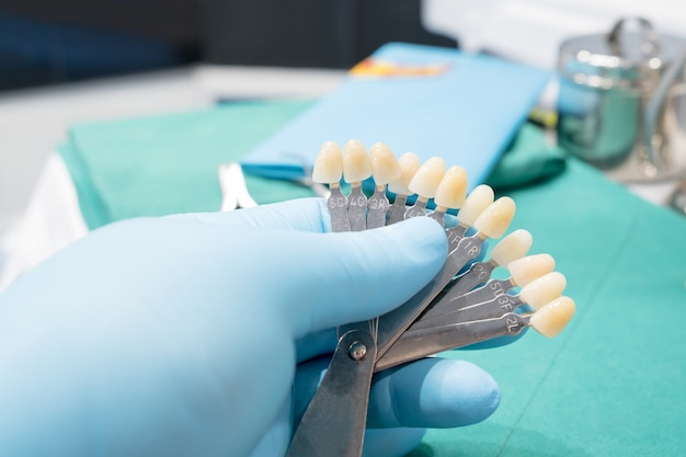 Guia de sombra para verificar a cor da coroa do dente na clínica. Foto Premium