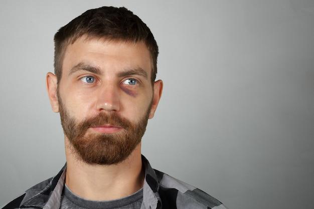 Homem, com, real, olho, hematoma Foto Premium