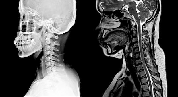 Imagem da coluna cervical radiografia e ressonância magnética normal: mostrando espaço discal estreito c4-5 com erosão e esclerose das placas terminais Foto Premium