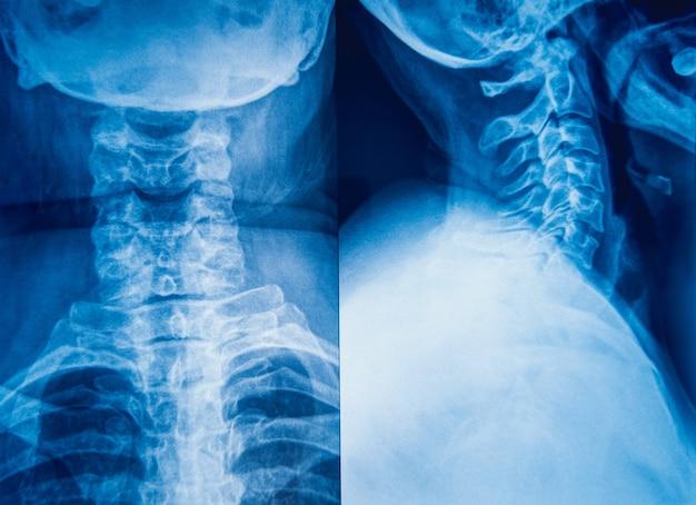 Imagem de raio-x do pescoço humano para um diagnóstico médico. Foto Premium