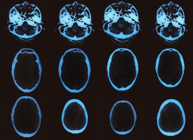 Imagem de raios x para tomografia computadorizada Foto Premium