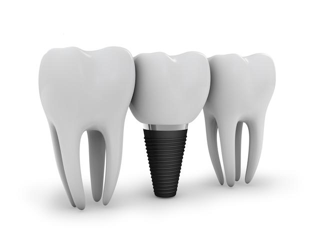 Implante dentário Foto Premium
