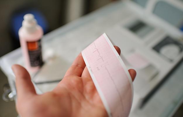 Impressão do relatório de eletrocardiograma que sai do eletrocardiógrafo na ala de parto Foto Premium