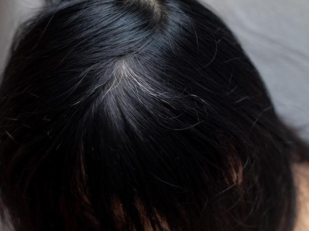 Jovem mostra suas raízes de cabelos brancos Foto Premium