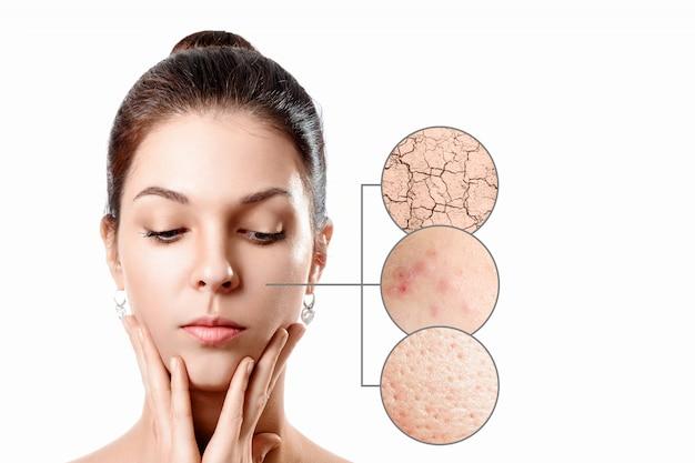 Jovem mulher com acne, pele seca, pele de pontos pretos no círculo de zoom. jovem garota, retrato da beleza. fechar-se. Foto Premium