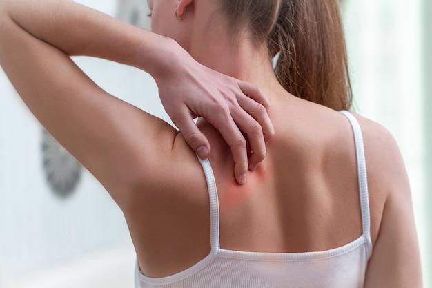 Mulher com coceira nas costas