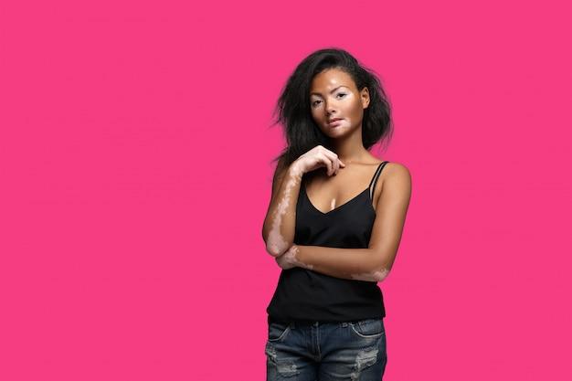 Linda garota africana em estúdio com problemas de pele vitiligo Foto Premium