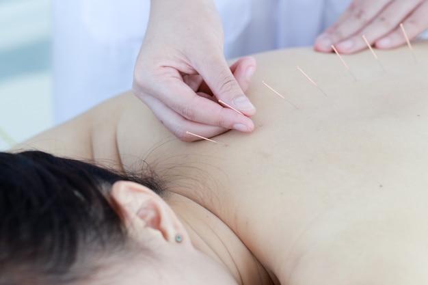 Mão do médico realizando terapia de acupuntura. mulher asiática em tratamento de acupuntura com uma linha de agulhas finas inseridas na pele do corpo no hospital clínico Foto Premium