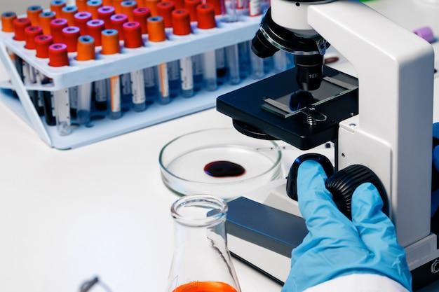 Mãos de um trabalhador de laboratório fazendo exame de sangue Foto Premium