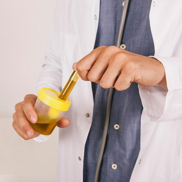 Mãos do médico segurando um teste de urina Foto gratuita