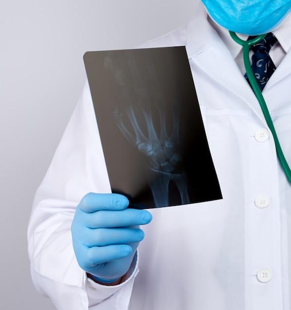 Médico de jaleco branco e luvas azuis de látex realiza um raio-x da mão de um homem e realiza um exame visual Foto Premium