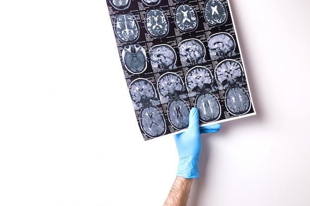 Médico detém imagem de ressonância magnética Foto Premium