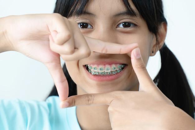Menina com dentes de chaves sorrindo e feliz Foto Premium