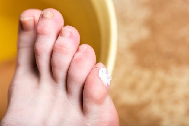 Milho ou clavus no pé feminino. aplicar pomada nas bolhas. Foto Premium