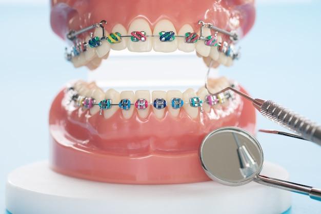 Modelo ortodôntico e dentista - modelo de demonstração de dentes de varetas ortodônticas Foto Premium