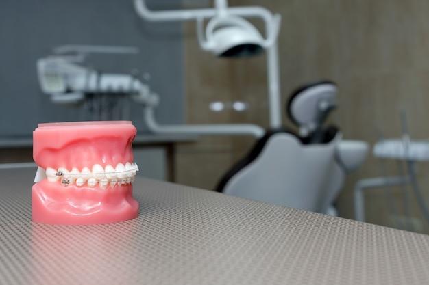 Modelo ortodôntico e ferramenta do dentista - modelo de dentes de demonstração de variedades de bráquetes ou bráquetes ortodônticos. aparelhos metálicos e cerâmicos nos dentes em um close de mandíbulas artificiais Foto Premium
