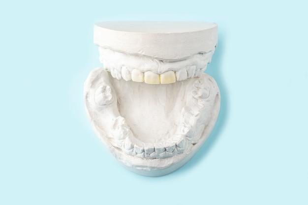 Molde de gesso estomatológico, moldes de mandíbulas humanas e dentes na mesa azul. gesso para fundição dentária para fabricação de dentaduras, aparelhos ou dentes postiços. conceito de odontologia e ortodontia. Foto Premium