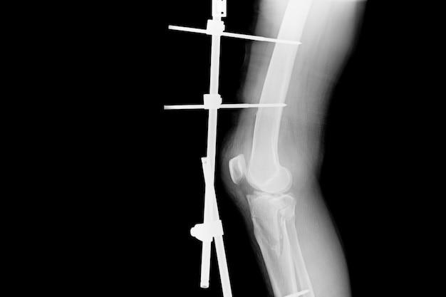 Mostrar fratura da tíbia e fíbula. imagem de raios-x da perna da fratura com fixação externa do implante. Foto Premium