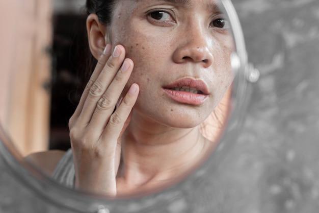 Mulher asiática, verificando o rosto com mancha escura no espelho Foto Premium
