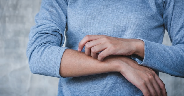 Mulher coçando a coceira no seu conceito de braço, skincare e medicina Foto Premium