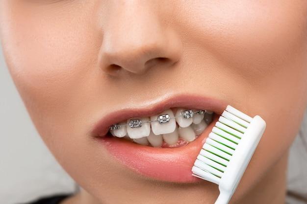Mulher jovem e bonita com aparelho de dentes Foto gratuita