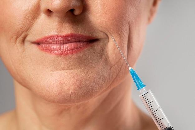 Mulher sorridente e idosa usando injeção para as rugas da boca Foto gratuita