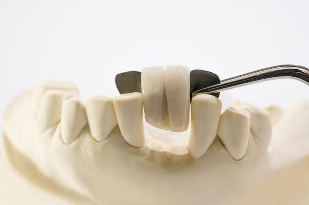 O close up / ponte dental de maryland / equipamento da coroa e da ponte e o modelo expressam a restauração do reparo. Foto Premium