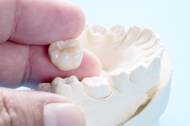 O equipamento para close-up / prótese ou prótese / coroa e ponte e o modelo expressam a restauração de correção. Foto Premium
